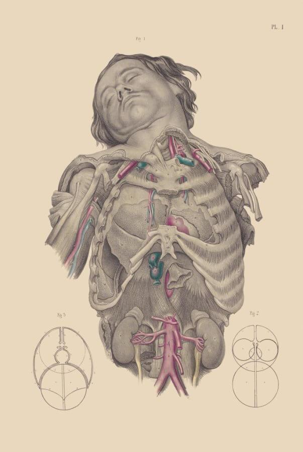 Horrores ilustrados da medicina macabra